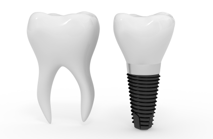 A mini dental implant is similar to a traditional implant; it is simply smaller and easier to place.