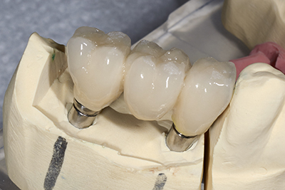 Porcelain fixed bridges done by our dentist at New Smiles Studio